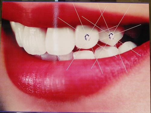 gems adhered to teeth