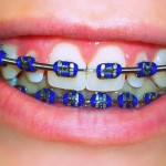 orthodontcs-and-braces