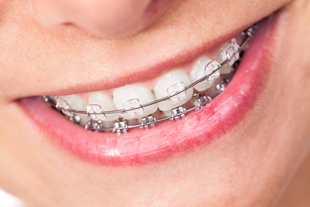 consult an orthodontists to see if adult braces are right for you
