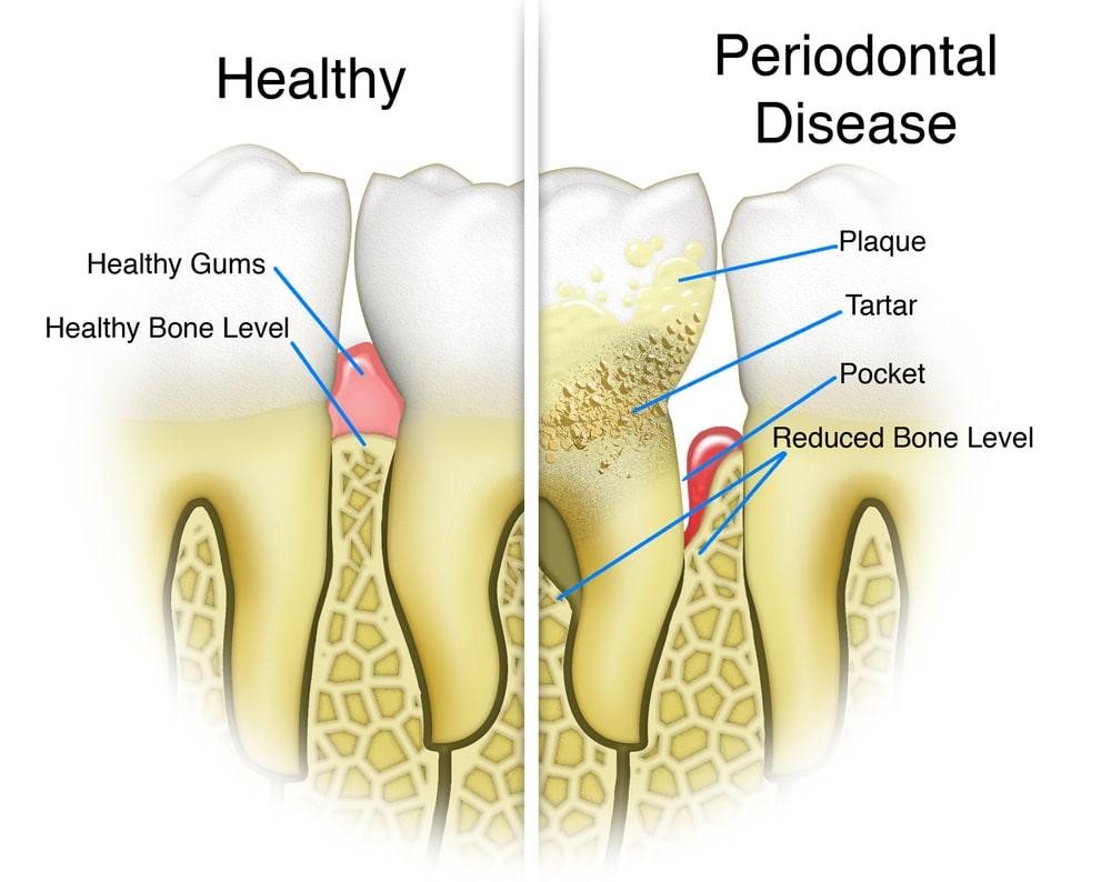 a dentist in Summerlin can treat gum disease