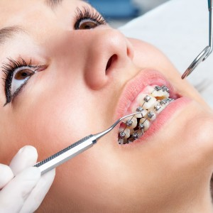 Braces Appointment Process