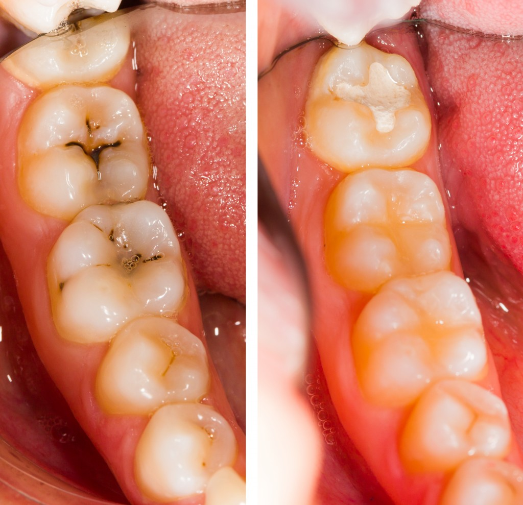 Teeth with cavities and fillings