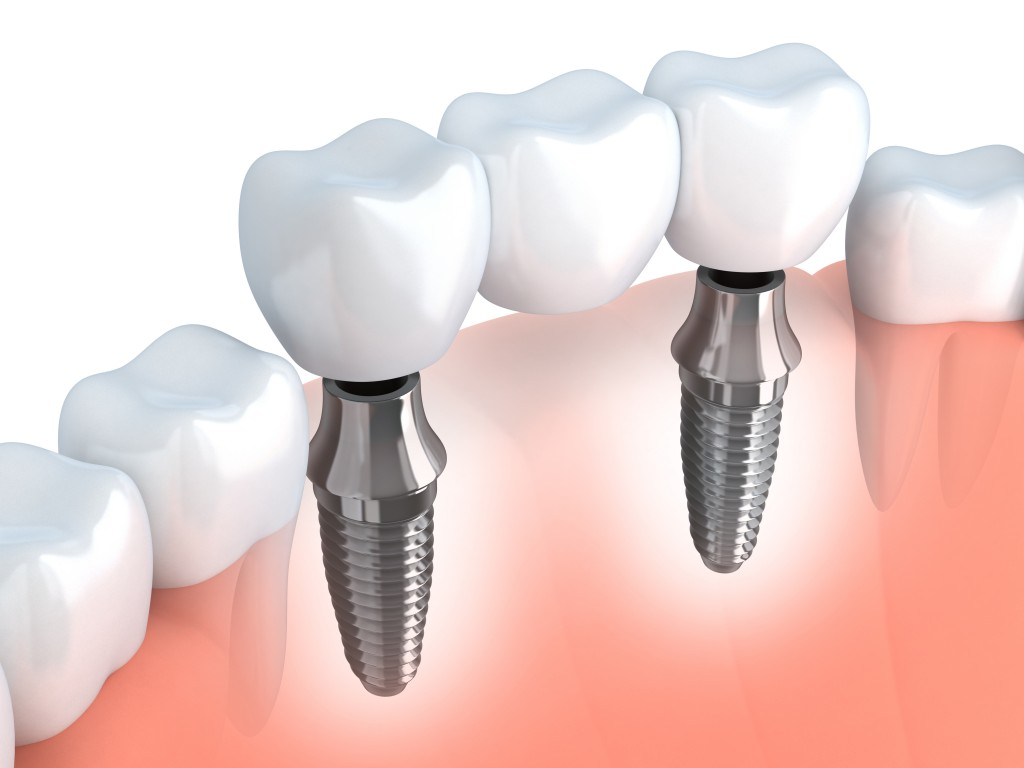Three-tooth dental implant