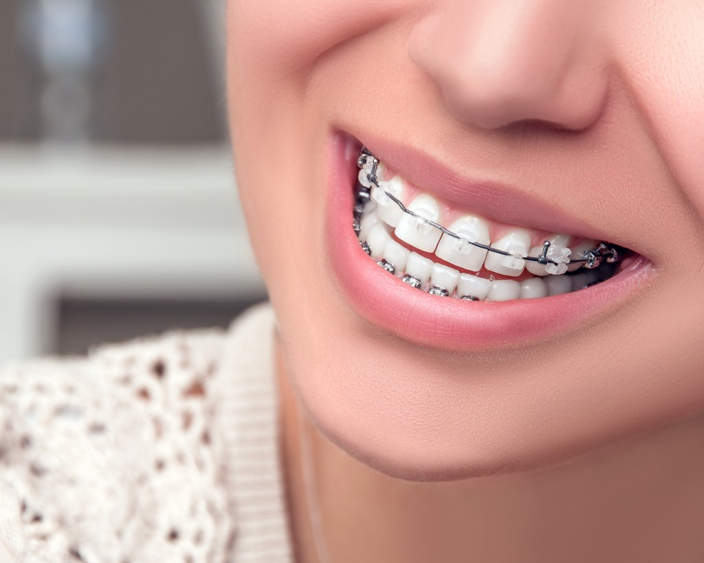 Young woman smiling with braces