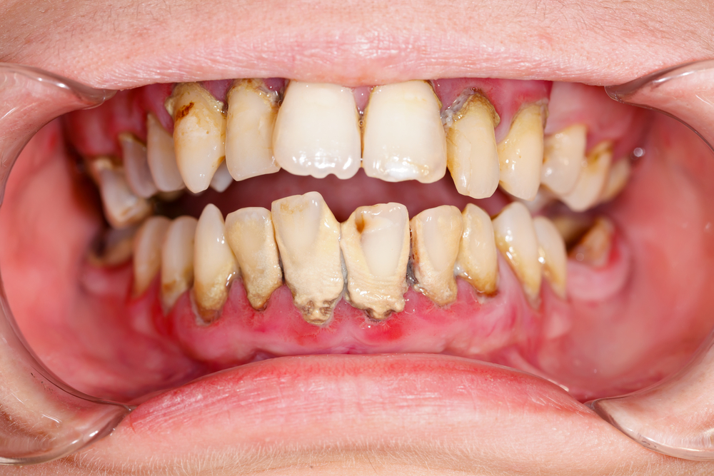 unhealthy teeth and gums