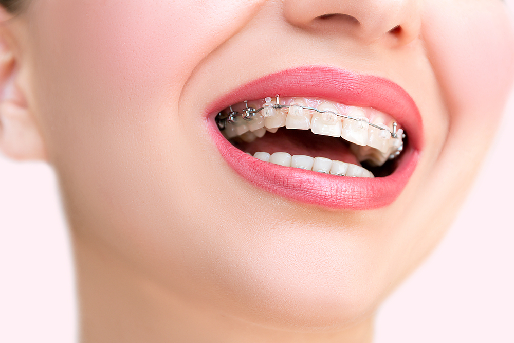 woman with braces smiling after visiting an orthodontist in las vegas