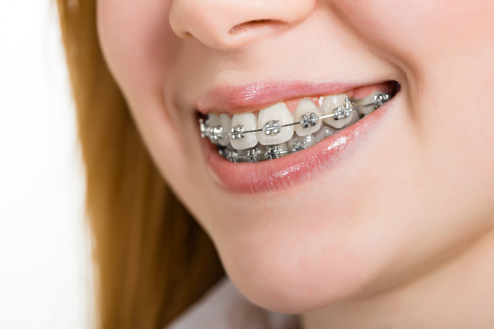 young woman with braces in las vegas