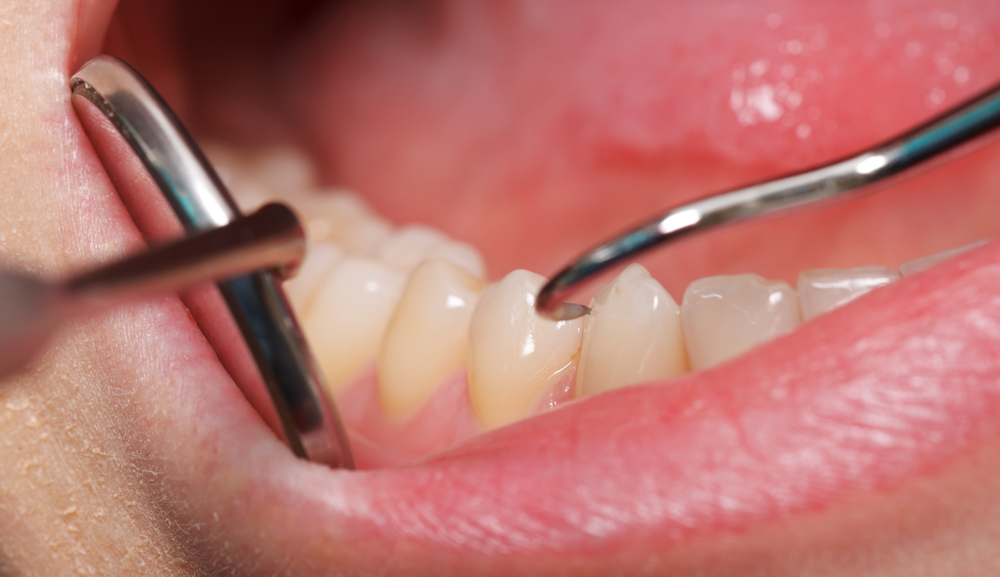Dental patient receiving care from a dentist