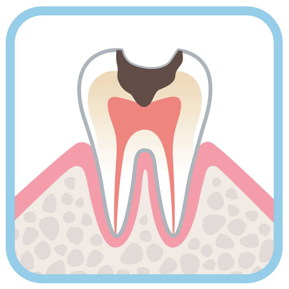 Illustration of a tooth with a cavity
