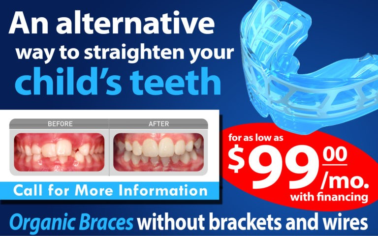 Myofunctional Device - Organic Braces - BDG Las Vegas Dentists