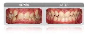 Myofunctional Device Crowding Case - Las Vegas Dentists
