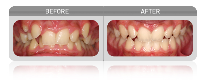 Myofunctional Device Crowding Case - Las Vegas Dentists