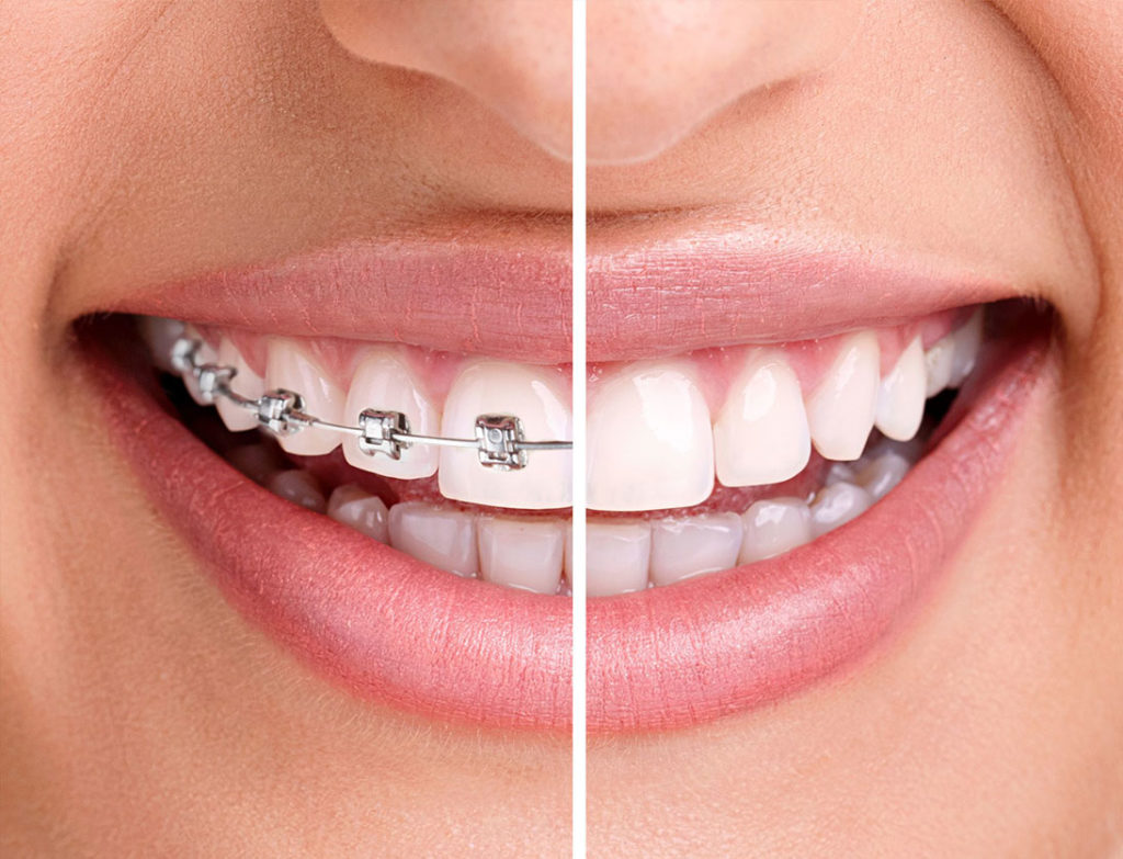 Las Vegas Orthodontics - Braces & Invisalign