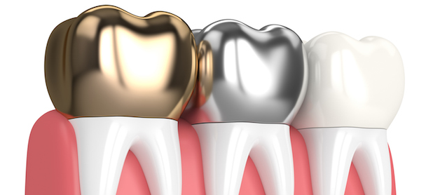 Types of Dental Crowns Las Vegas