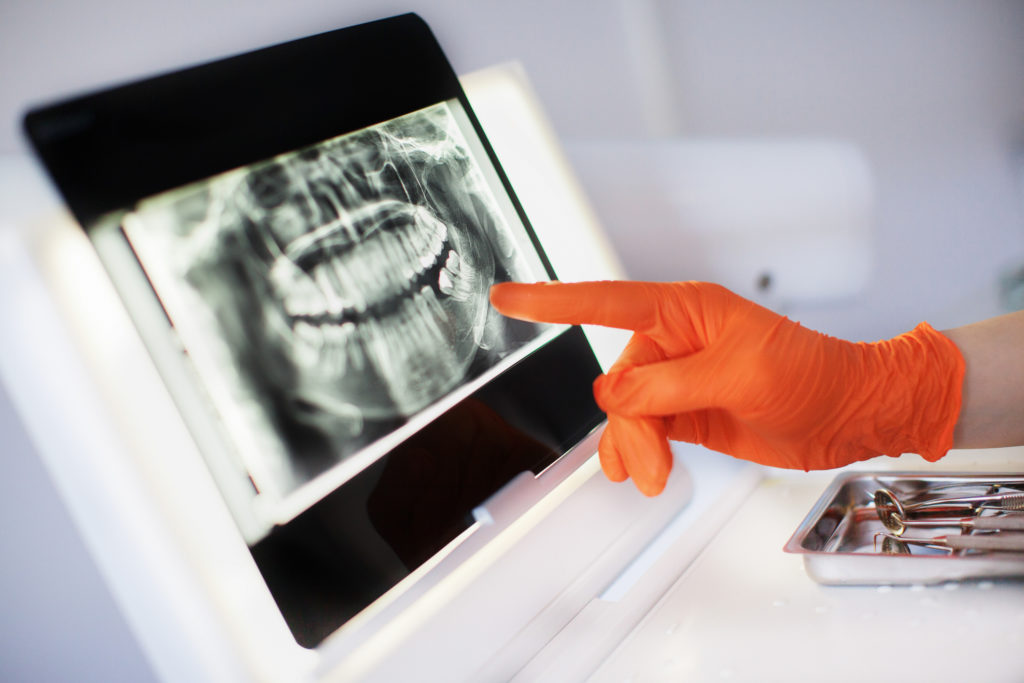 are dental implants worth the investment