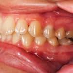 how to treat swollen or receding gums