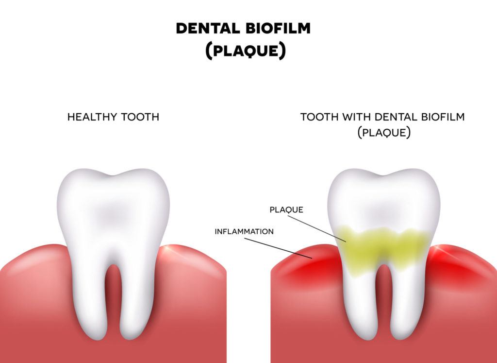healthy tooth compared to tooth with plaque