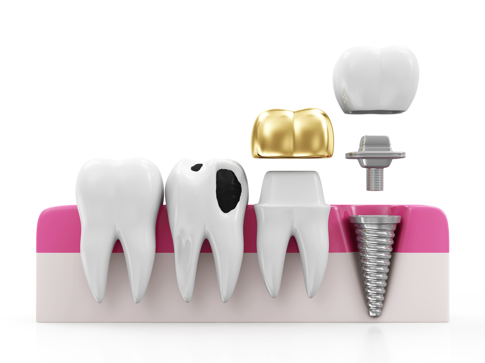 what to do if your dental crown falls off