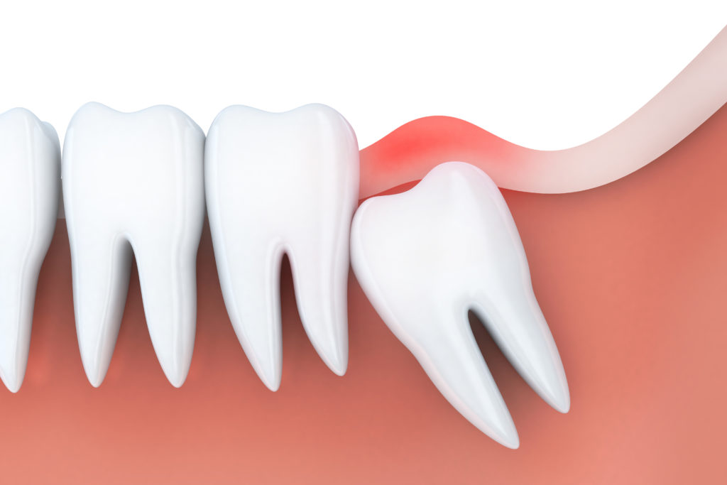 wisdom teeth removal and recovery